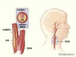 什麼是頸動脈斑塊?有哪些症狀?又有哪些治療方法?醫生仔細解答